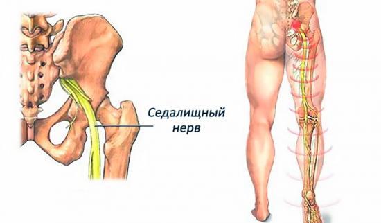 Защемление седалищного нерва симптомы и лечение к какому врачу обращаться