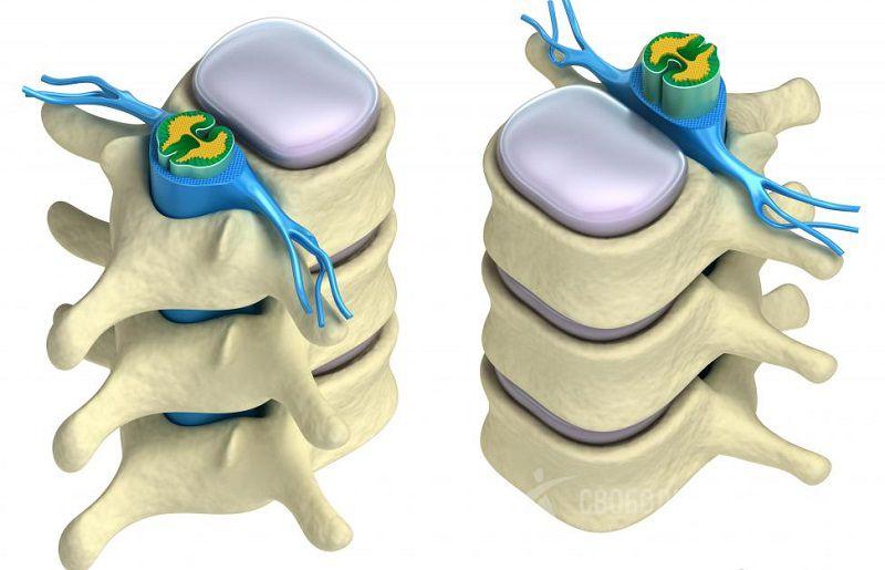 Уколы для восстановления хрящевой ткани