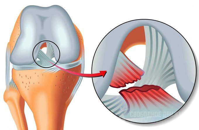 Онемение после эндопротезирования коленного сустава для лечения голеностопного сустава