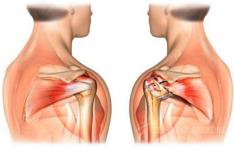 Артроз акромиально-ключичного сочленения плечевого сустава лечение причины симптомы
