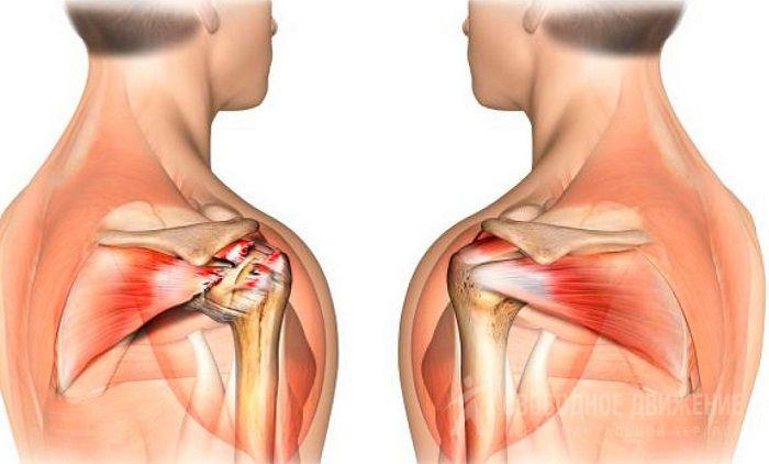 Периартроз тазобедренного сустава методы рентгеновского исследования костей и суставов