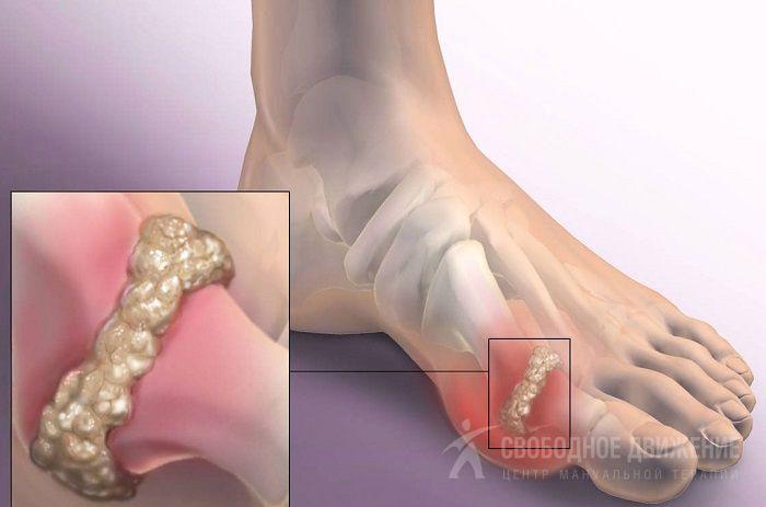 Болит большой палец ноги в суставе мышцы сустава