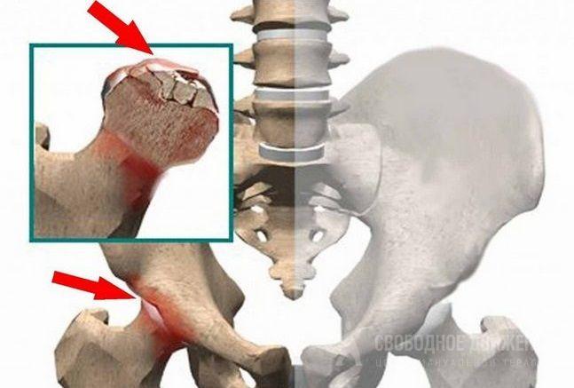 Разложение сустава тазобедренного ортез на коленный сустав softec oa