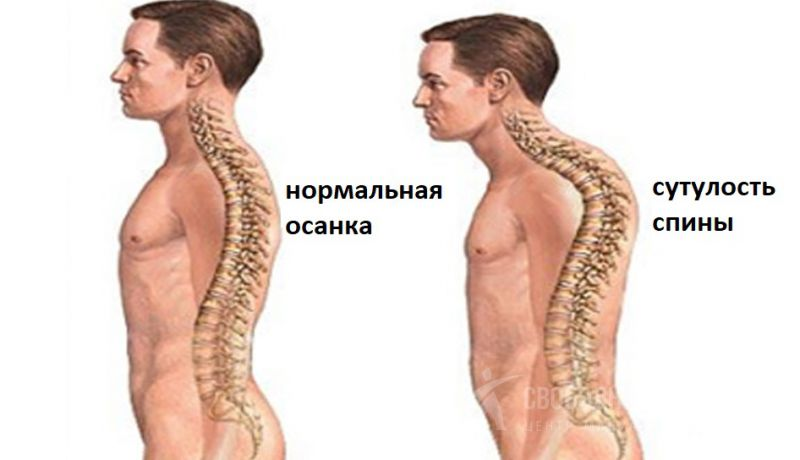 Сильная сутулость спины у взрослых и детей: как убрать с помощью мануальной терапии, чем опасно