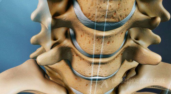 Унковертебральный артроз шейного отдела позвоночника симптомы лечение и профилактика