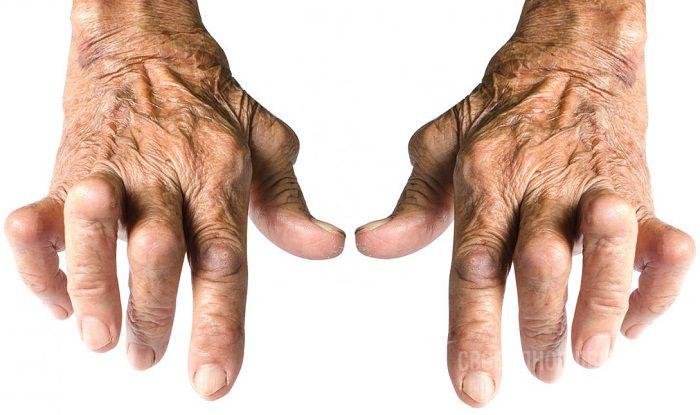 Прострелы в суставах рук и ног припораты при болях в суставах
