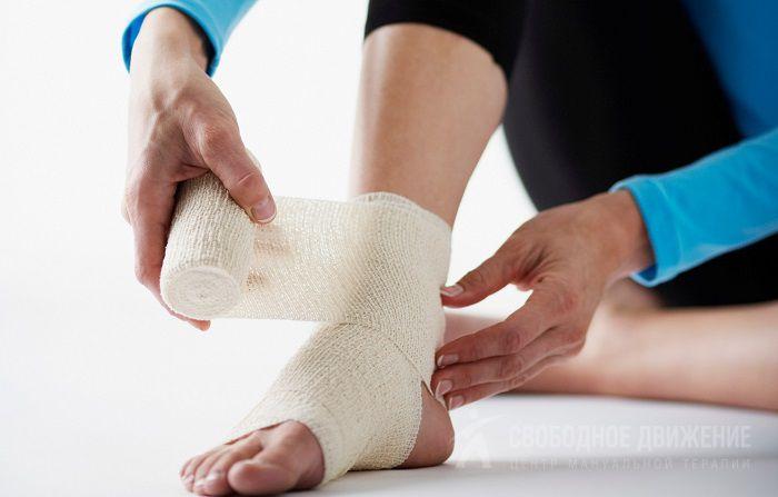 Как выглядит вывих ноги