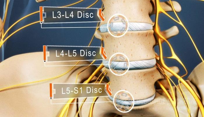 Протрузия диска l4 l5 l5 S1: где локализуется, как проявляется и ...