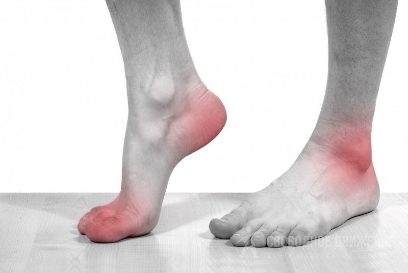 Что делать если болит нога кости стопы thumbnail