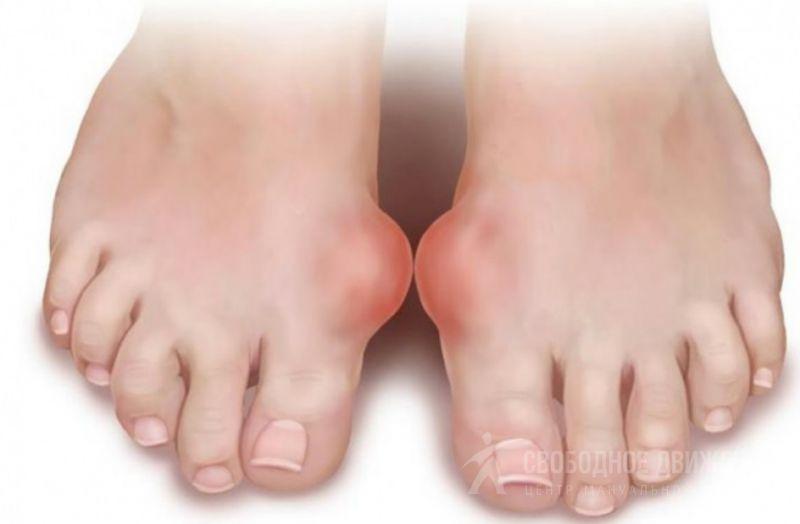Косточки на Больших Пальцах Ног Лечение Лечение в