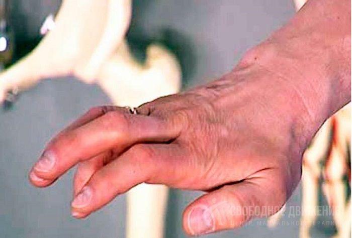 Локтевой нерв: лечение поражения (невропатии), симптомы иннервации