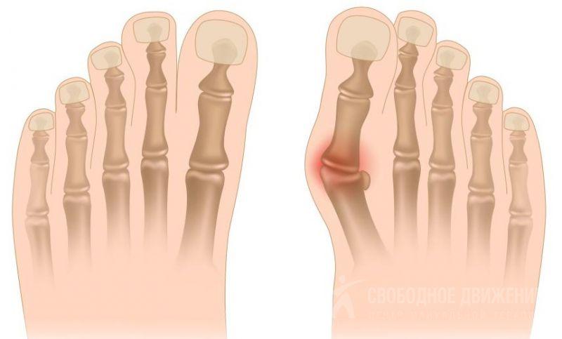 Отстеопат при вальгусной деформации голеностопных суставов глинолечение суставы