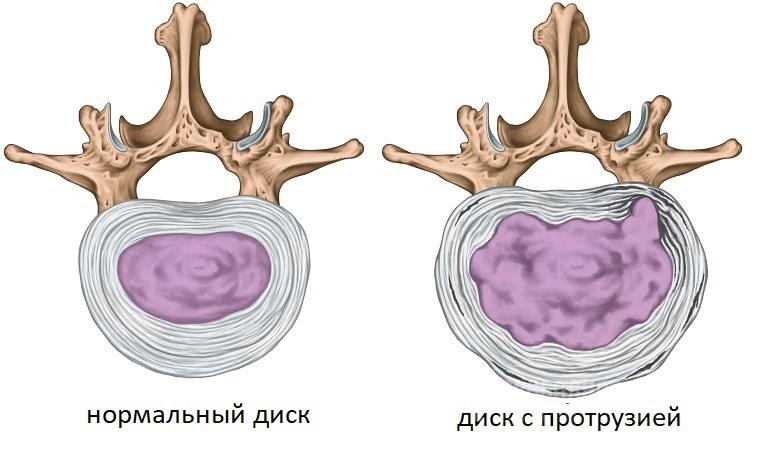 Лечение остеохондроза поясничного отдела позвоночника с протрузиями дисков -