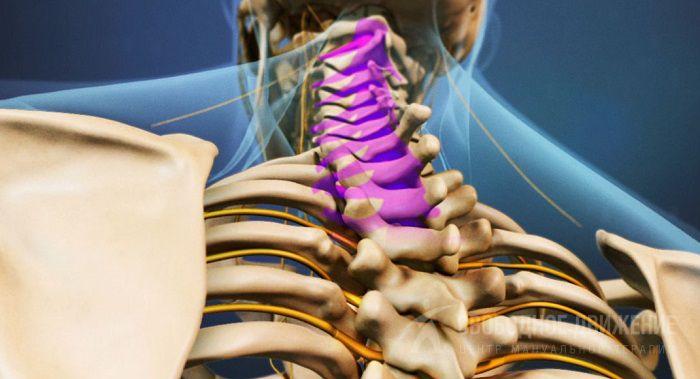 Можно ли лечить дегенеративные изменения в позвоночнике