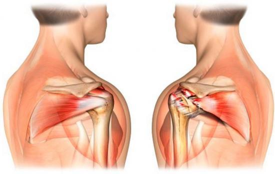 Изображение - Почему болят плечевые суставы и мышцы de07cef7b01287e82bff0930a5a94607.small