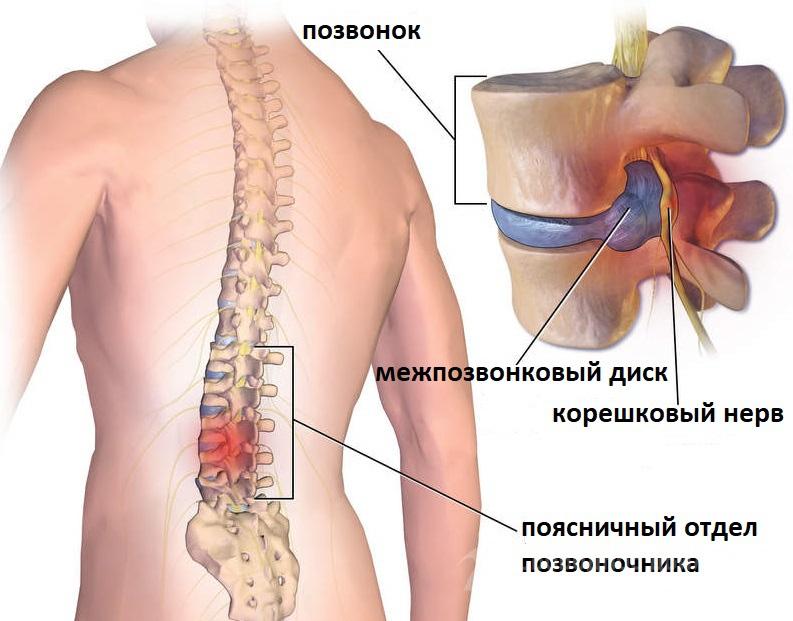 Остеопороз протрузии