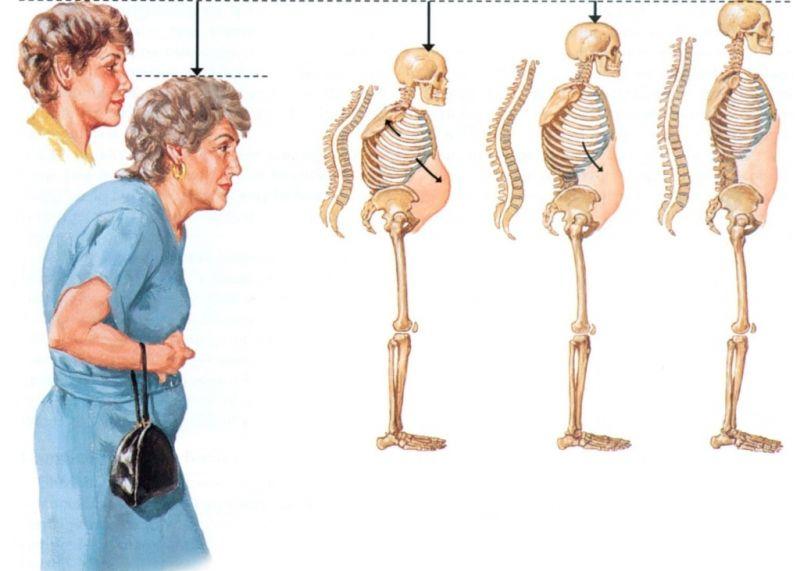 Остеопения позвоночника: что это такое, как лечить