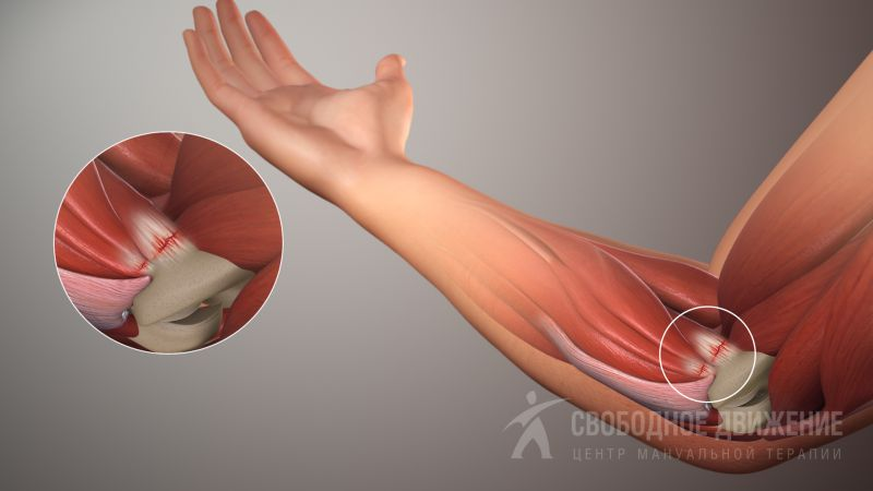 Ломит локтевые суставы рук