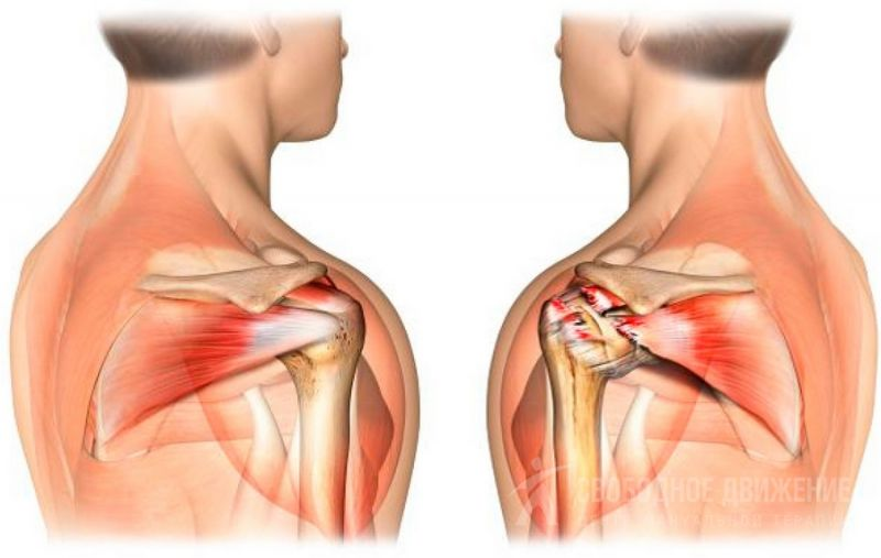 Растяжение мышц плечевого сустава как лечить в домашних условиях