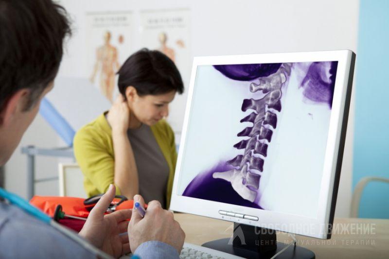 Субхондральный склероз замыкательных пластинок тел позвонков: что это такое, причины возникновения, симптомы и способы лечения методами мануальной тер