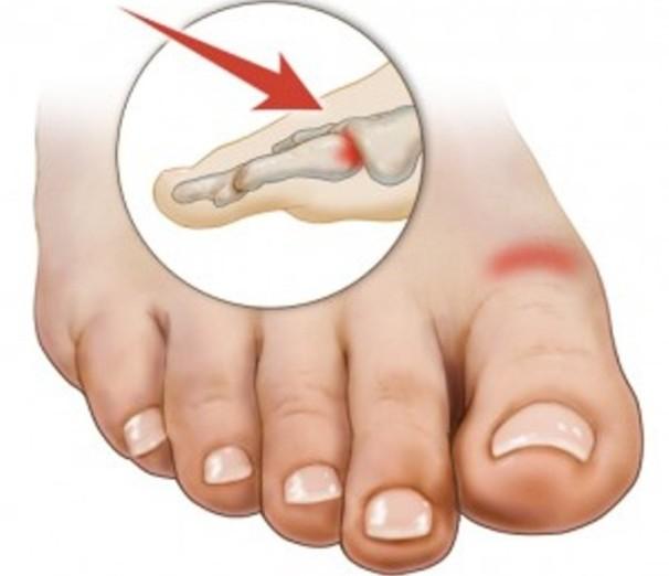 Болит сустав большого пальца ноги что делать перелом голеностопного сустава без смещения